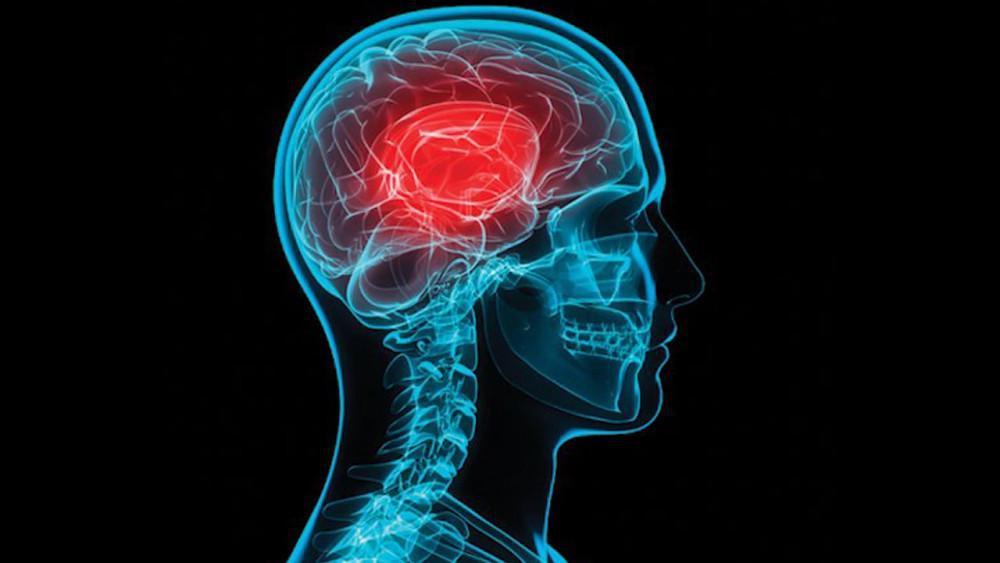 Replica brain scan of a concussion.